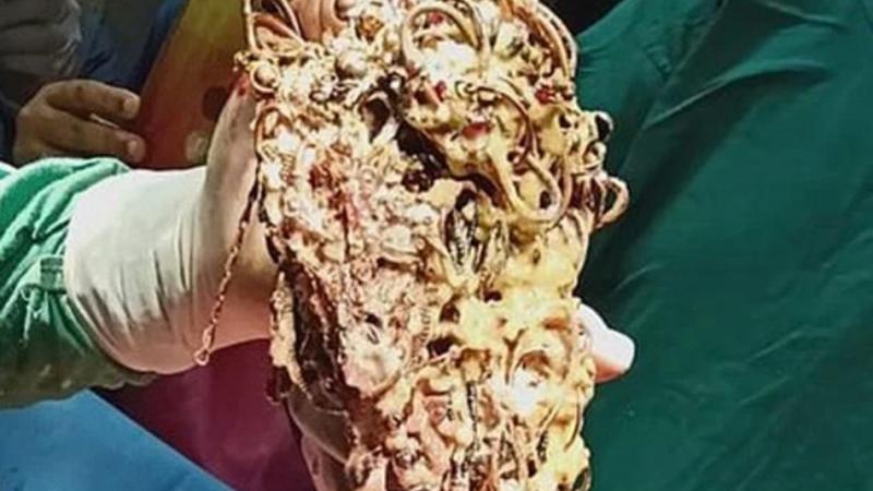 Photo of Hirurzi iz stomaka djevojke izvadili nakit vrijedan 123.000 KM