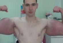 "Photo of ""Popaj"" hitno operisan, ljekari mu jedva spasili ruke (VIDEO)"