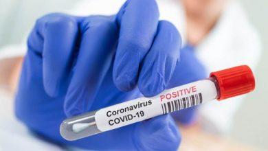 Photo of U Srpskoj 72 novozaražene osobe; U Doboju četiri osobe pozitivne na virus korona