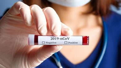 Photo of U Srpskoj 369 novozaraženih; U Doboju 13 osoba pozitivno na virus korona