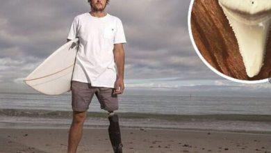 Photo of Australijanac koji je preživio napad ajkule se izborio za pravo da zadrži njen zub (FOTO)